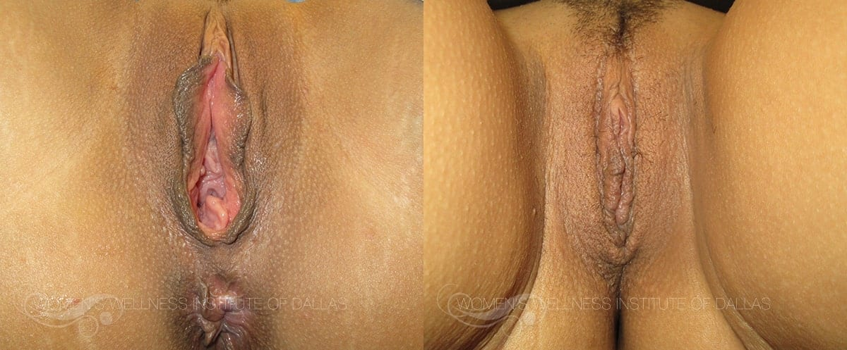 Vaginoplasty Before and After Photo - Patient 31