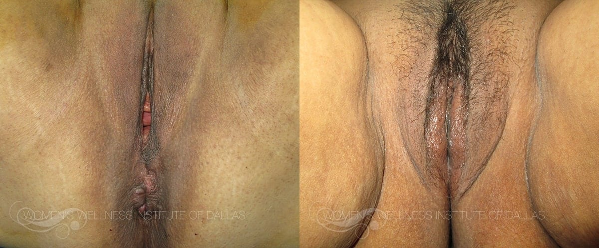 Vaginoplasty Before and After Photo - Patient 33