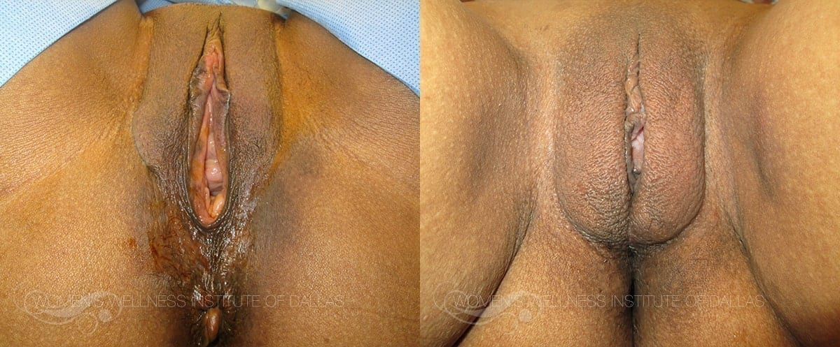Vaginoplasty Before and After Photo - Patient 36