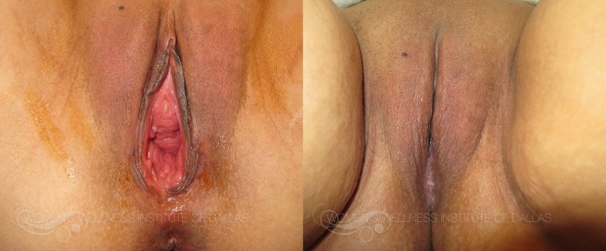 Vaginoplasty Before and After Photo - Patient 38