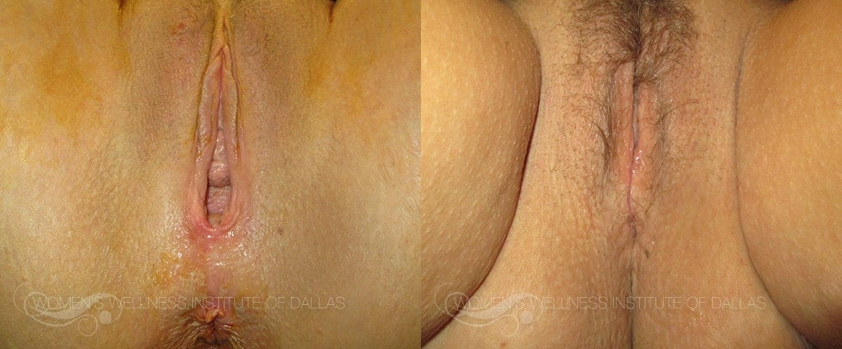 Vaginoplasty Before and After Photo - Patient 44