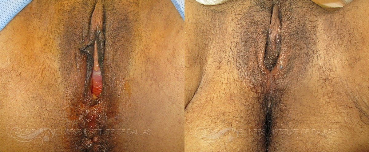 Vaginoplasty Before and After Photo - Patient 45