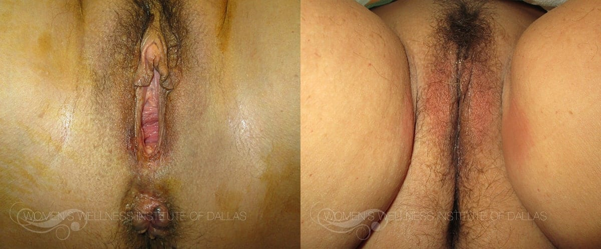 Vaginoplasty Before and After Photo - Patient 46