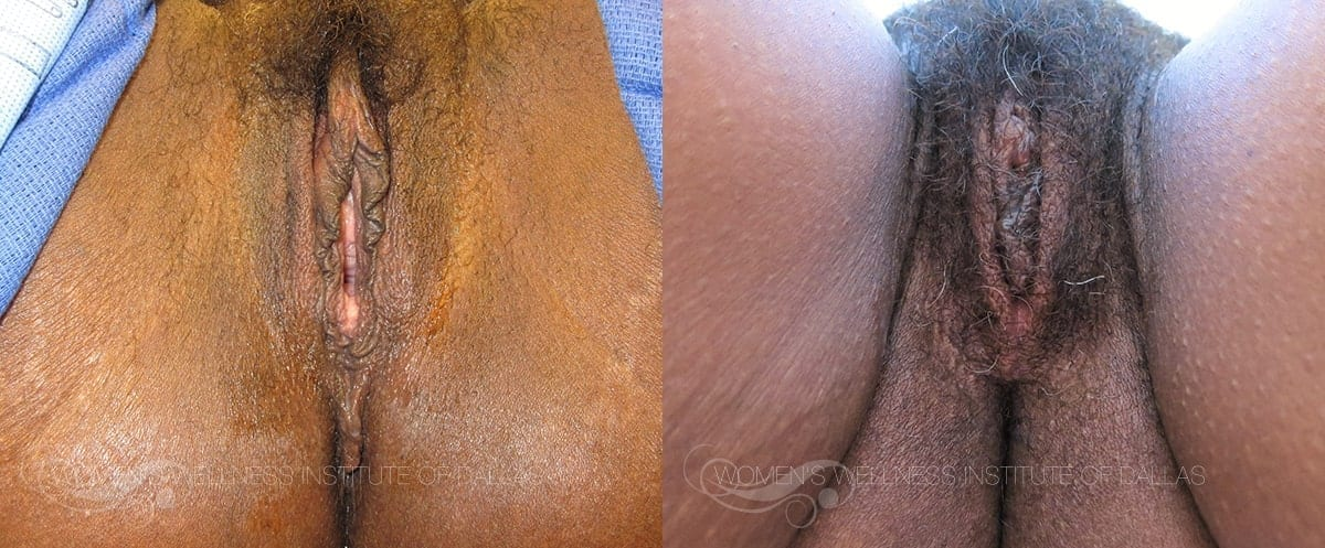 Vaginoplasty Before and After Photo - Patient 47