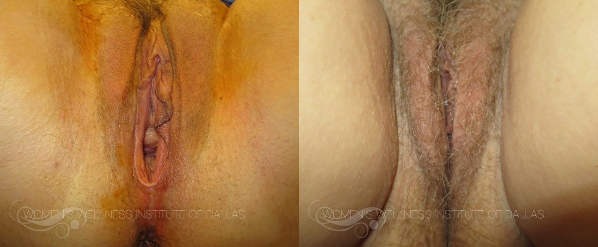 Vaginoplasty Before and After Photo - Patient 48