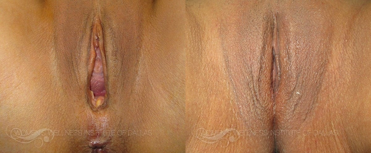 Vaginoplasty Before and After Photo - Patient 8