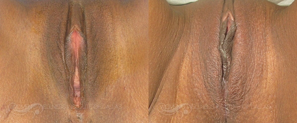 Vaginoplasty Before and After Photo - Patient 9