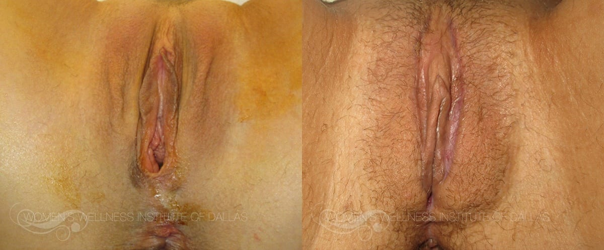Labiaplasty Before and After Slider Photo B