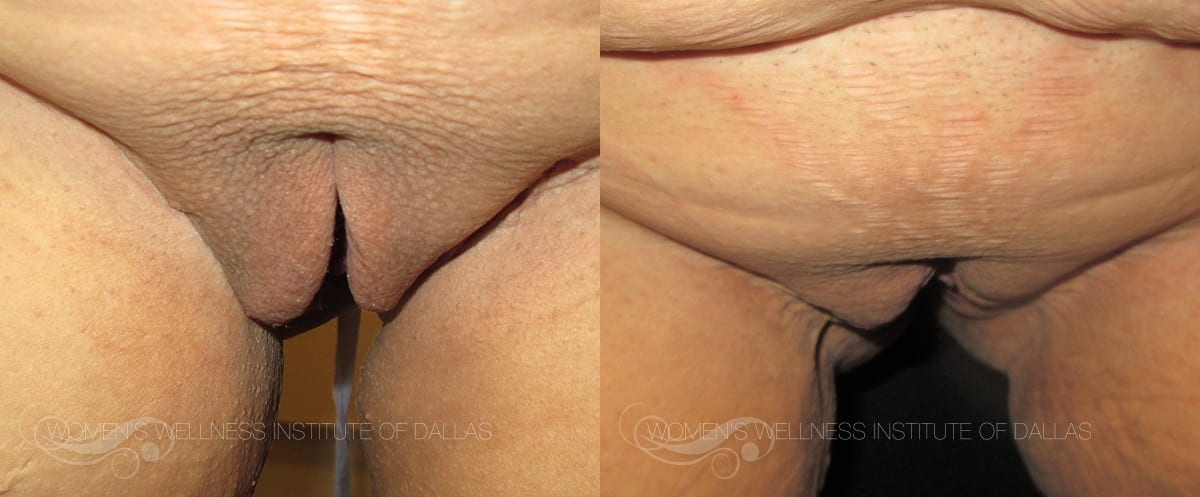 Labiaplasty Before and After Slider Photo E