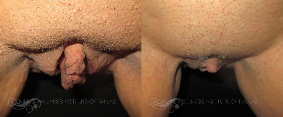 Labiaplasty Before and After Slider Photo H